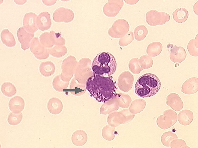 Emlőciszta - Tünetek, okok és kezelés - Jód papillómákból